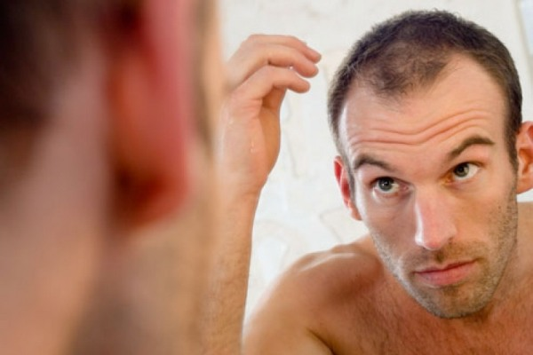 Thinning-hair