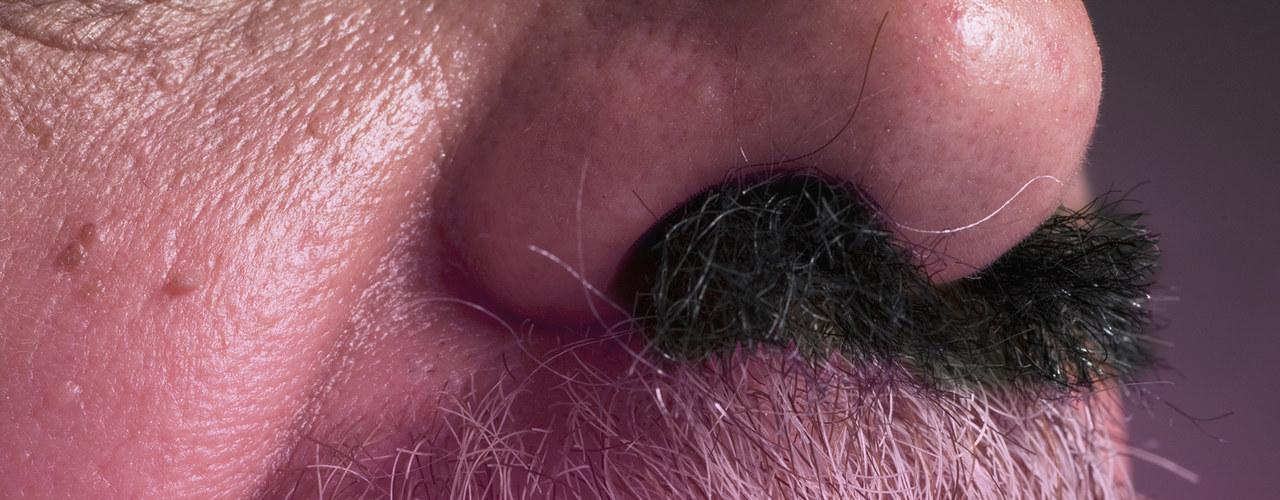 nose-hair